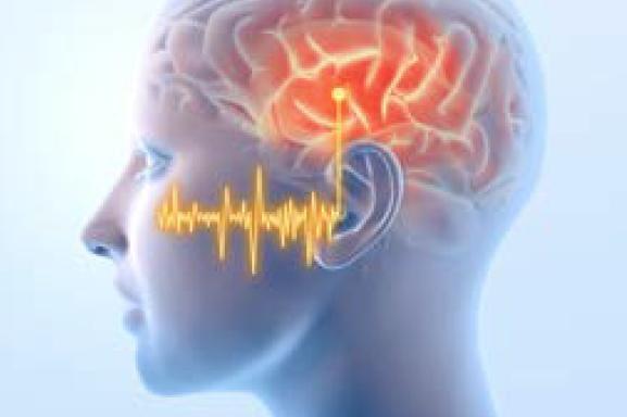 Gehirn Klangsignale